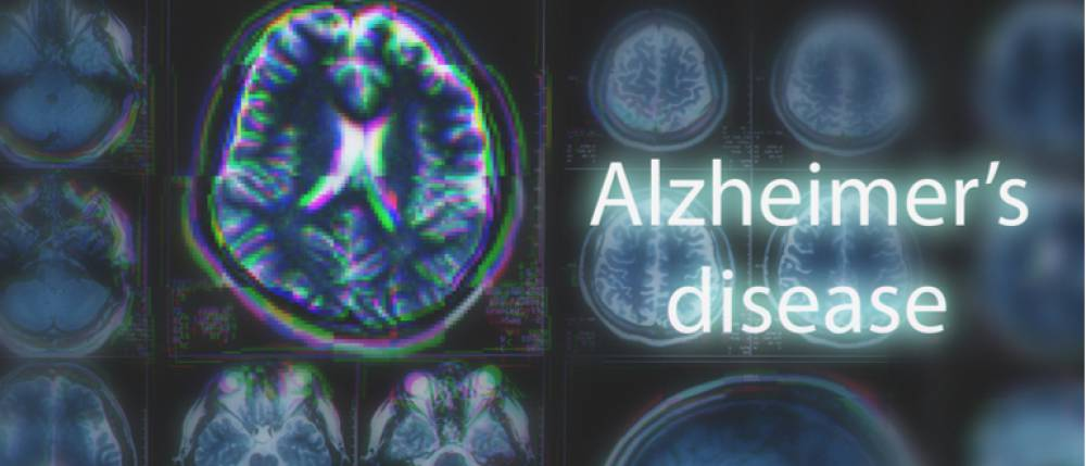 how to take care of your parents suffering from alzheimer s disease